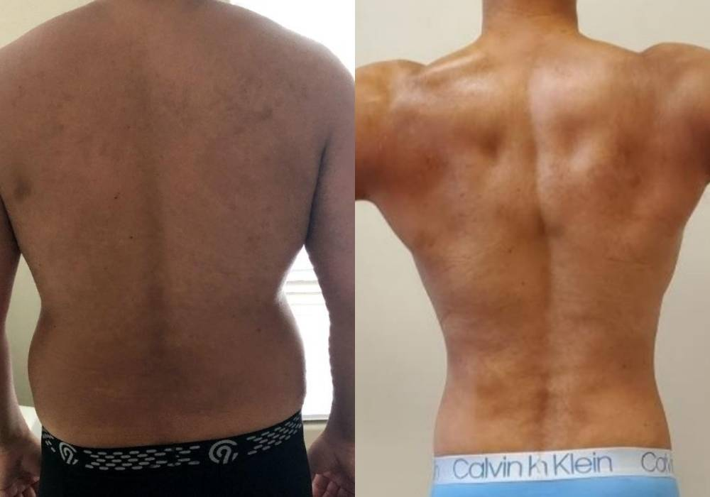 Before | After (Back)