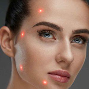Laser-Genesis-alladerm
