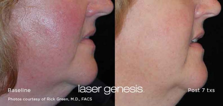 Xeo-Laser-Genesis-Before-After-2-alladerm