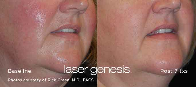 Xeo-Laser-Genesis-Before-After-3-alladerm