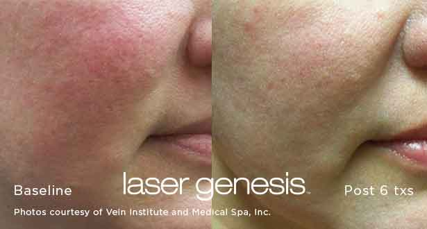Xeo-Laser-Genesis-Before-After-4-alladerm