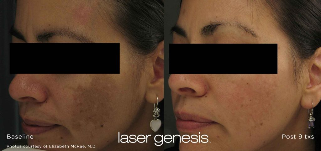 Xeo-Laser-Genesis-Before-After-alladerm