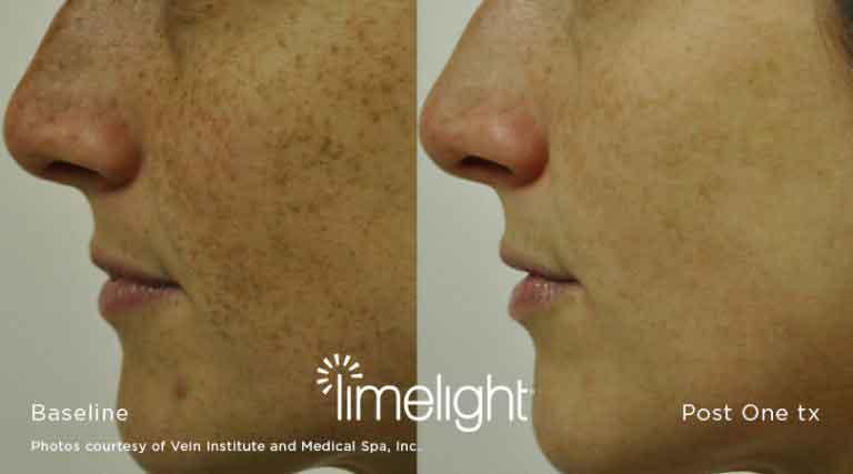 limelight photofacial (ipl)