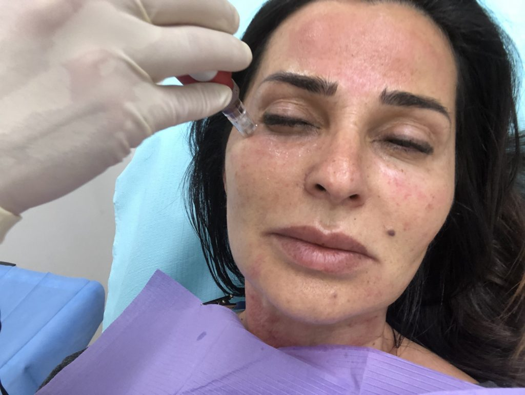 what are basics of microneedling